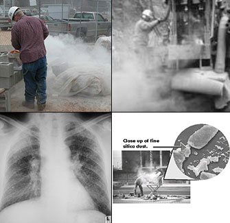Workers Prone to Silicosis and the Effects